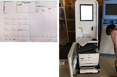心电图打印